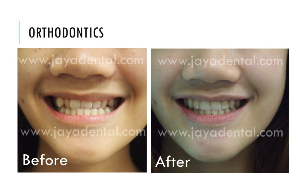 before-after-fixed-braces-jaya-dental