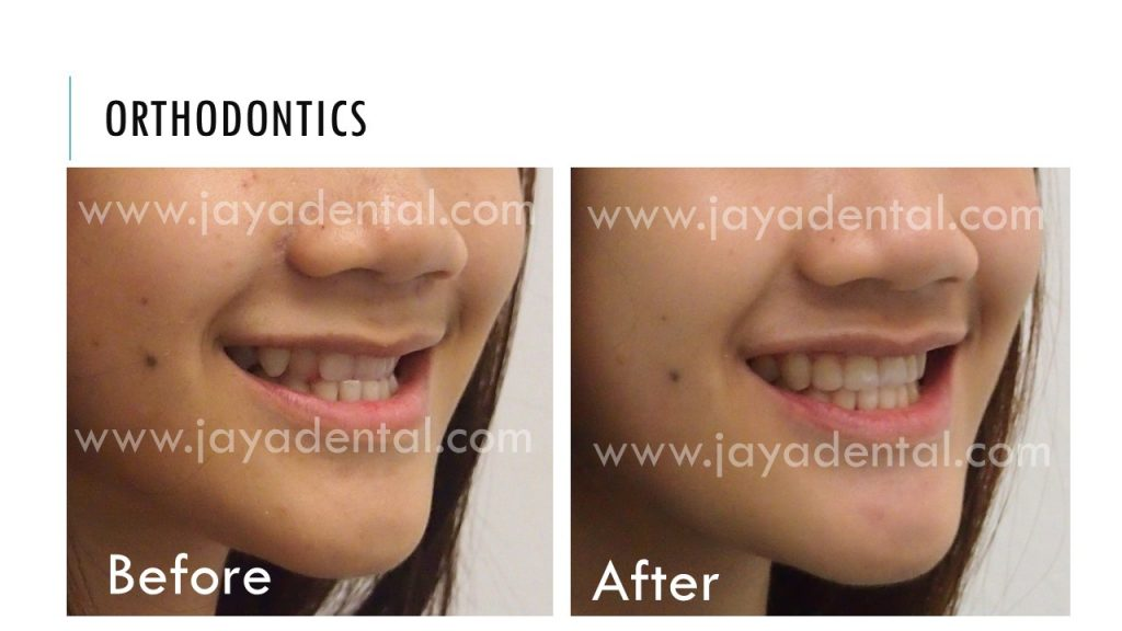 before-after-fixed-braces-jaya-dental2