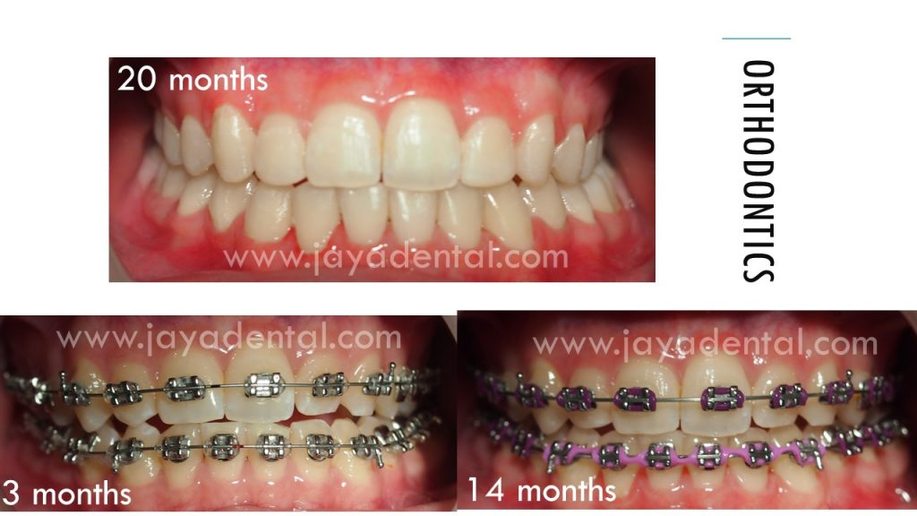 fixed-braces-process-jaya-dental